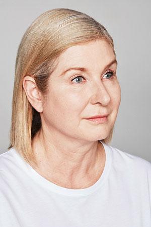 """אחרי הטיפול Skinboosters להצערת עור הפנים של ד""""ר דפנה וינשטיין. מומחית בכירורגיה כללית."""