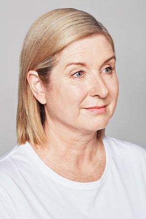 """לפני הטיפול Skinboosters להצערת עור הפנים של ד""""ר דפנה וינשטיין. מומחית בכירורגיה כללית."""