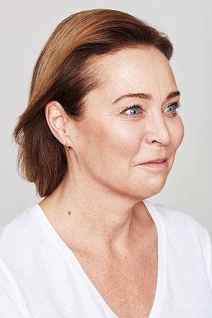 """טיפול Skinboosters להצערת עור הפנים. ד""""ר דפנה וינשטיין. מומחית בכירורגיה כללית. אחרי הטיפול."""