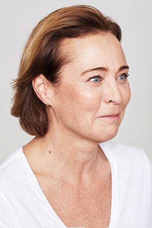 """טיפול Skinboosters להצערת עור הפנים. ד""""ר דפנה וינשטיין. מומחית בכירורגיה כללית. לפני הטיפול."""