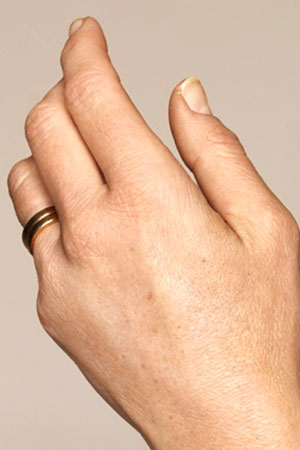 "Skinboosters לכפות הידיים . ד""ר דפנה וינשטיין. מומחית בכירורגיה כללית. אחרי הטיפול."