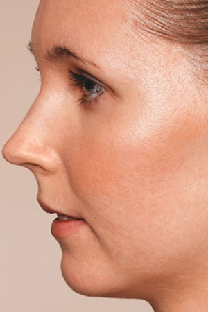 "Skinboosters לפנים כולל לצלקות אקנה. ד""ר דפנה וינשטיין. מומחית בכירורגיה כללית. אחרי הטיפול."