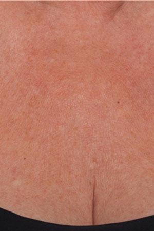 """ד""""ר דפנה וינשטיין. מומחית בכירורגיה כללית. Skinboosters לאיזור המחשוף אחרי הטיפול."""