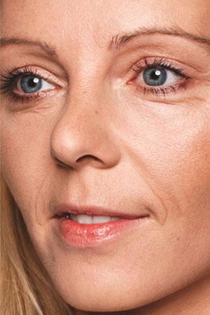 """Skinboosters להצערת העור ומילוי קמטים ע""""י חומצה היאלורונית. ד""""ר דפנה וינשטיין. מומחית בכירורגיה כללית. לפני הטיפול."""
