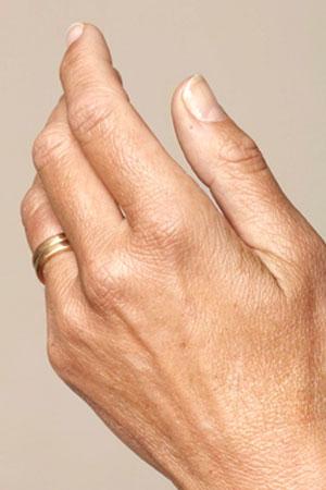 "Skinboosters לכפות הידיים . ד""ר דפנה וינשטיין. מומחית בכירורגיה כללית. לפני הטיפול."