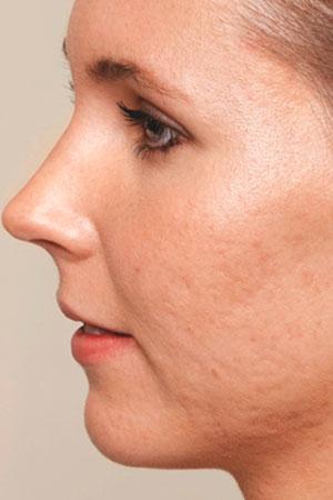 """Skinboosters לפנים כולל לצלקות אקנה. ד""""ר דפנה וינשטיין. מומחית בכירורגיה כללית. לפני הטיפול."""