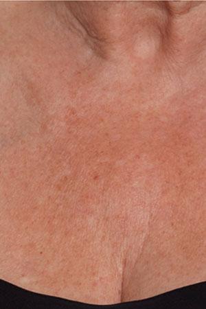 """ד""""ר דפנה וינשטיין. מומחית בכירורגיה כללית. Skinboosters לאיזור המחשוף לפני הטיפול."""