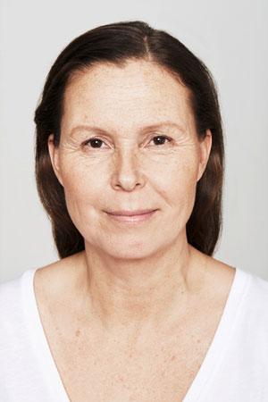 """אחרי הטיפול Skinboosters להצערת עור הפנים. ד""""ר דפנה וינשטיין. מומחית בכירורגיה כללית."""