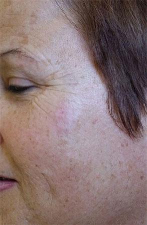 """ד""""ר דפנה וינשטיין. מומחית בכירורגיה כללית. אחרי טיפול הסרת נגעים שפירים בעור."""