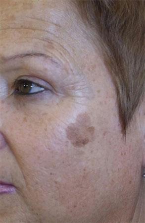 """ד""""ר דפנה וינשטיין. מומחית בכירורגיה כללית. לפני טיפול הסרת נגעים שפירים בעור"""